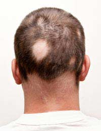 Scalp Reduction Surgery Hair Loss Bald