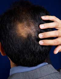 Poisoning Hair Loss Poison Sudden Hair